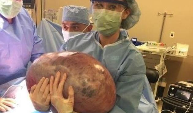 Após meses de dor inexplicada, mulher tem tumor de 22 kg removido do ovário
